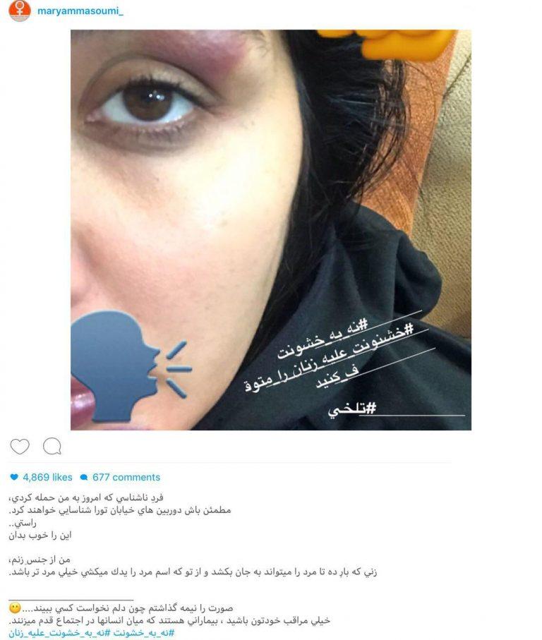 حمله فیزیکی به بازیگر زن در خیابان!+عکس